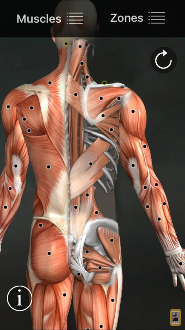 Screenshot - Muscle Trigger Points